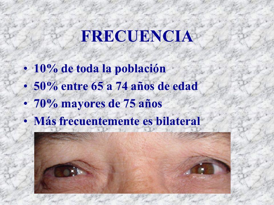FRECUENCIA 10% de toda la población 50% entre 65 a 74 años de edad 70% mayores de 75 años Más frecuentemente es bilateral