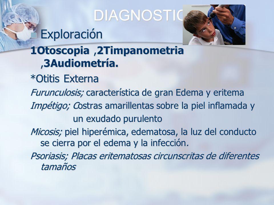 DIAGNOSTICO Exploración Exploración 1Otoscopia,2Timpanometria,3Audiometría. *Otitis Externa Furunculosis; característica de gran Edema y eritema Impét