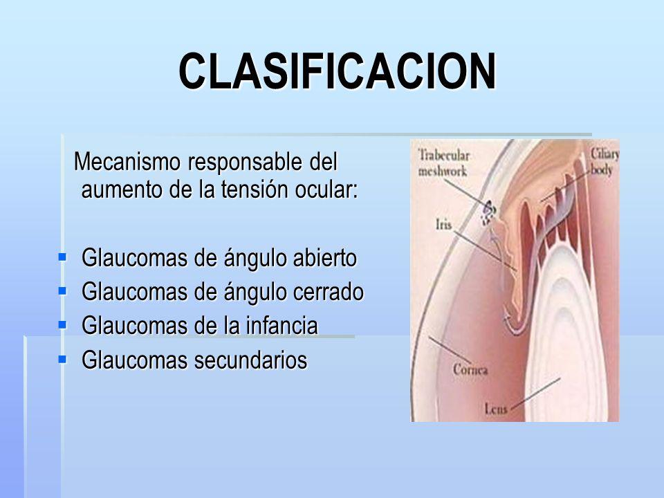 FISIOPATOLOGIA TEORIA MECANICA: TEORIA MECANICA: Elevación de la PIO comprime la lámina cribosa y directamente daña los axones.