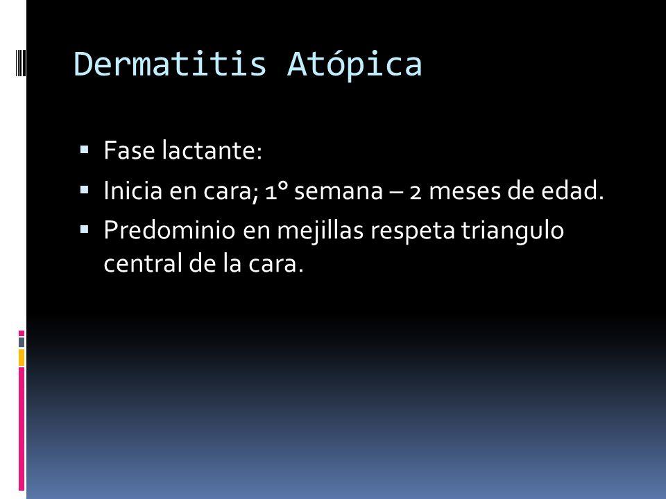 Dermatitis Atópica Fase lactante: Inicia en cara; 1° semana – 2 meses de edad. Predominio en mejillas respeta triangulo central de la cara.