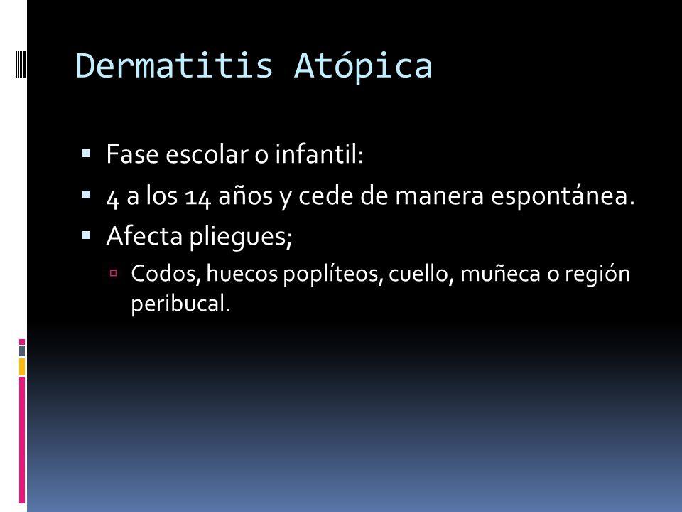 Dermatitis Atópica Fase escolar o infantil: 4 a los 14 años y cede de manera espontánea. Afecta pliegues; Codos, huecos poplíteos, cuello, muñeca o re