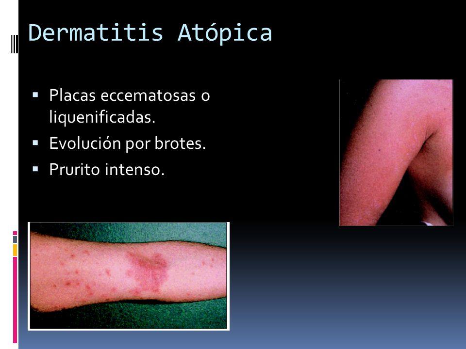 Dermatitis Atópica Placas eccematosas o liquenificadas. Evolución por brotes. Prurito intenso.