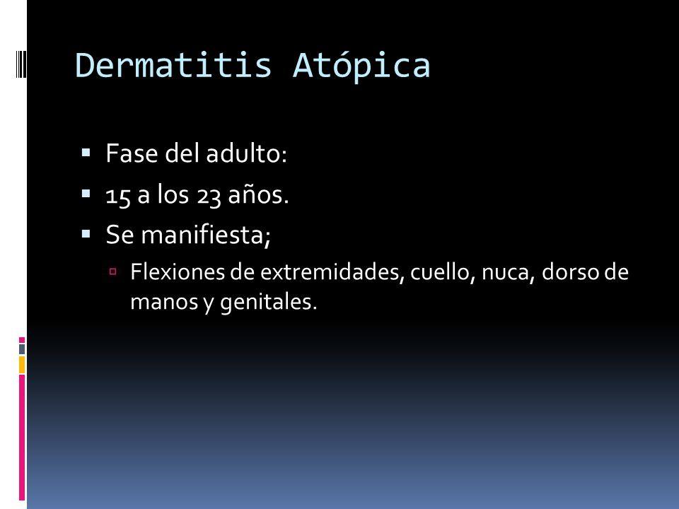 Dermatitis Atópica Fase del adulto: 15 a los 23 años. Se manifiesta; Flexiones de extremidades, cuello, nuca, dorso de manos y genitales.