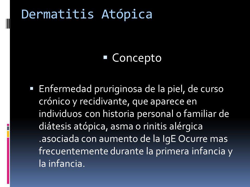 Dermatitis Atópica Concepto Enfermedad pruriginosa de la piel, de curso crónico y recidivante, que aparece en individuos con historia personal o famil