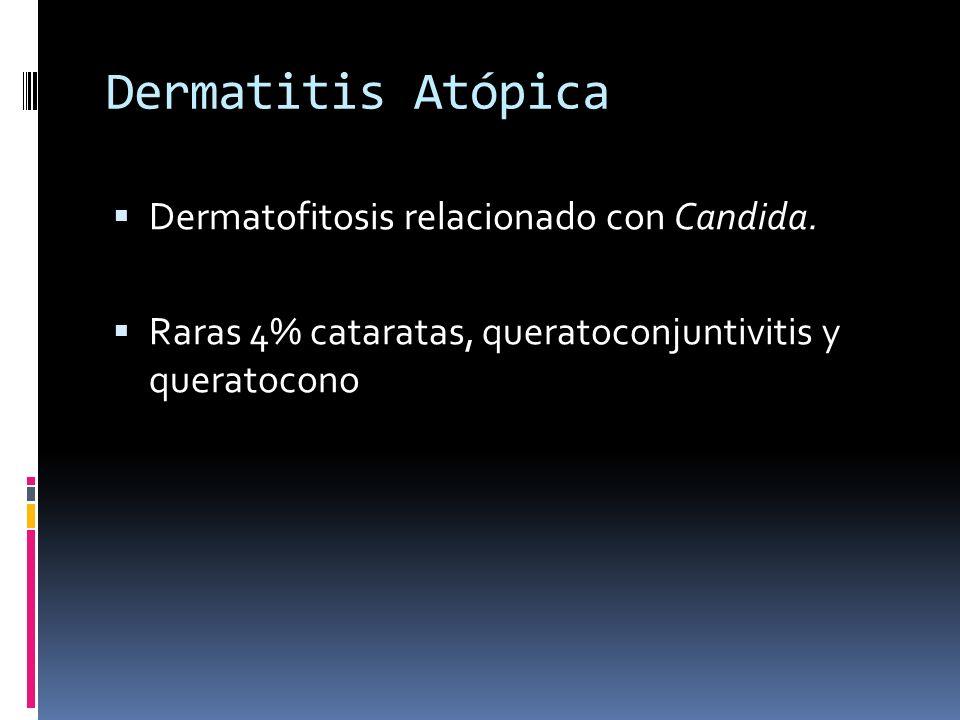 Dermatitis Atópica Dermatofitosis relacionado con Candida. Raras 4% cataratas, queratoconjuntivitis y queratocono