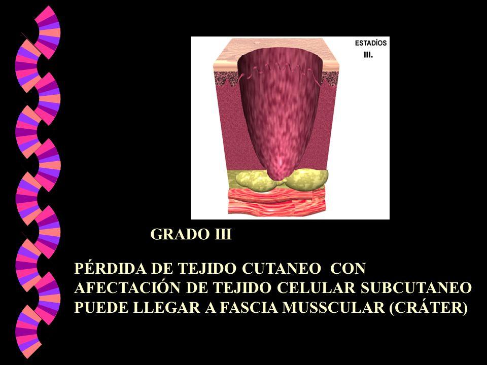 PÉRDIDA DE TEJIDO CUTANEO CON AFECTACIÓN DE TEJIDO CELULAR SUBCUTANEO PUEDE LLEGAR A FASCIA MUSSCULAR (CRÁTER) GRADO III
