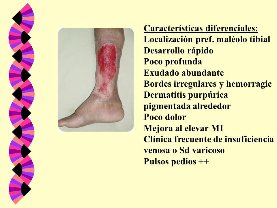 Características diferenciales: Localización pref. maléolo tibial Desarrollo rápido Poco profunda Exudado abundante Bordes irregulares y hemorragic Der