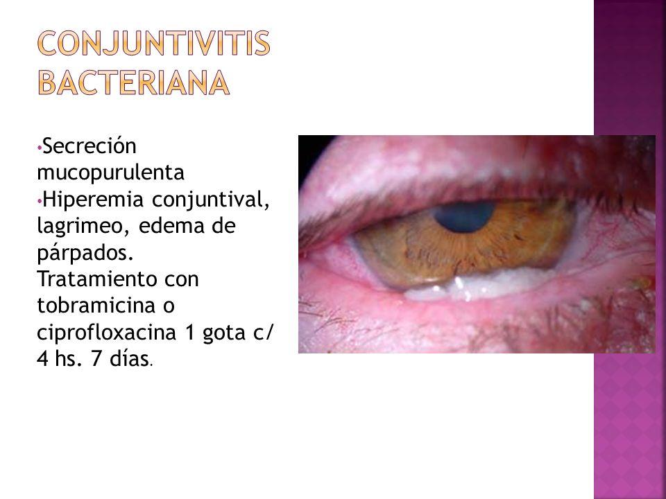 Secreción mucopurulenta Hiperemia conjuntival, lagrimeo, edema de párpados. Tratamiento con tobramicina o ciprofloxacina 1 gota c/ 4 hs. 7 días.