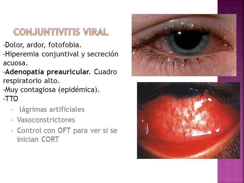 Dolor, ardor, fotofobia. Hiperemia conjuntival y secreción acuosa. Adenopatía preauricular. Cuadro respiratorio alto. Muy contagiosa (epidémica). TTO