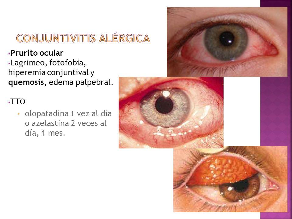 Prurito ocular Lagrimeo, fotofobia, hiperemia conjuntival y quemosis, edema palpebral. TTO olopatadina 1 vez al día o azelastina 2 veces al día, 1 mes