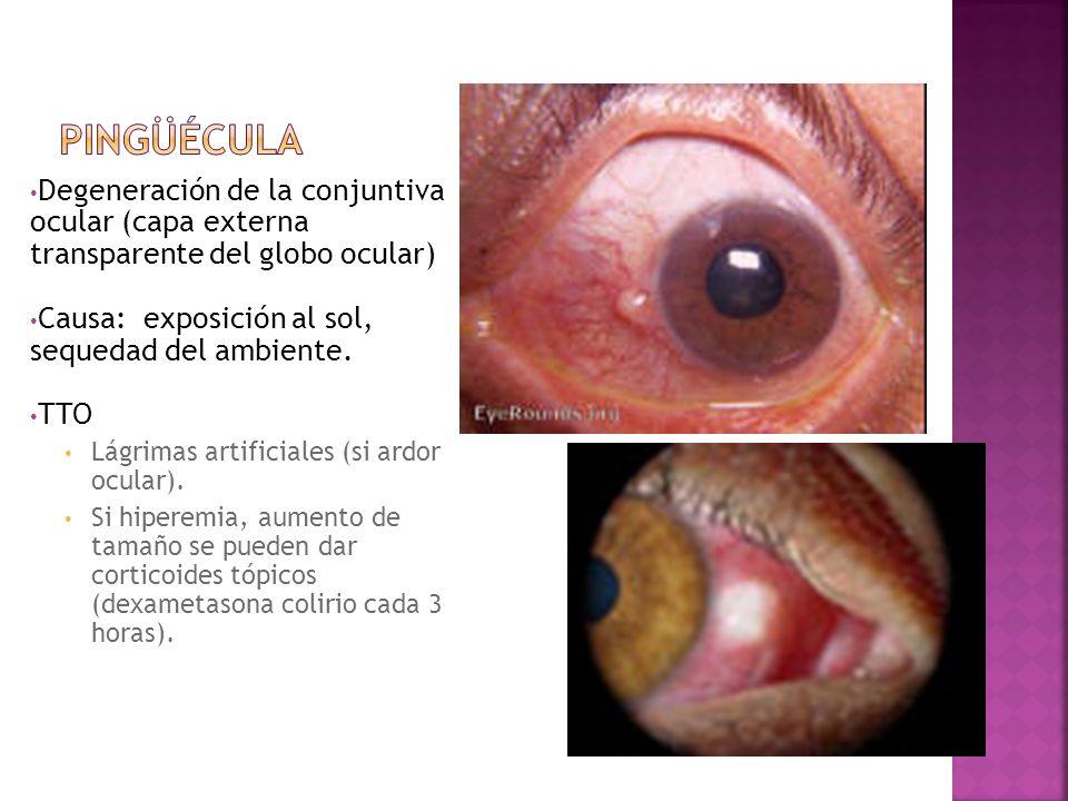 Degeneración de la conjuntiva ocular (capa externa transparente del globo ocular) Causa: exposición al sol, sequedad del ambiente. TTO Lágrimas artifi