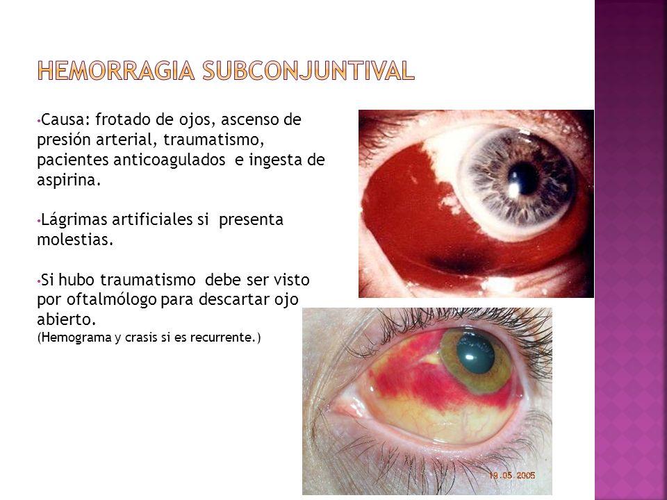 Causa: frotado de ojos, ascenso de presión arterial, traumatismo, pacientes anticoagulados e ingesta de aspirina. Lágrimas artificiales si presenta mo