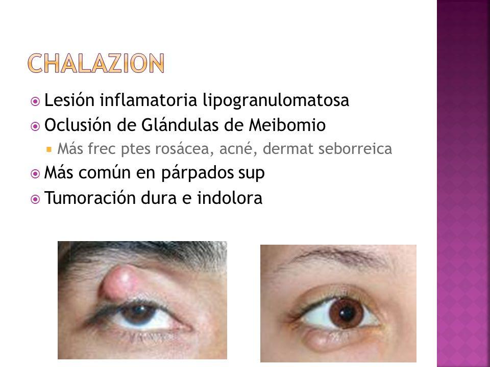 Lesión inflamatoria lipogranulomatosa Oclusión de Glándulas de Meibomio Más frec ptes rosácea, acné, dermat seborreica Más común en párpados sup Tumor