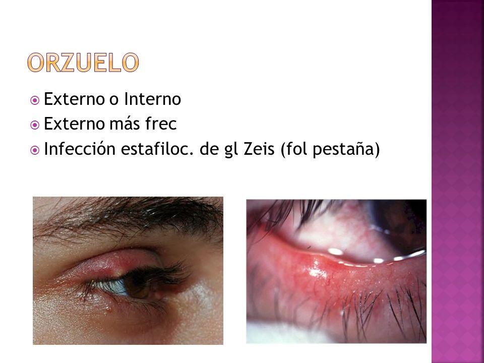 Externo o Interno Externo más frec Infección estafiloc. de gl Zeis (fol pestaña)