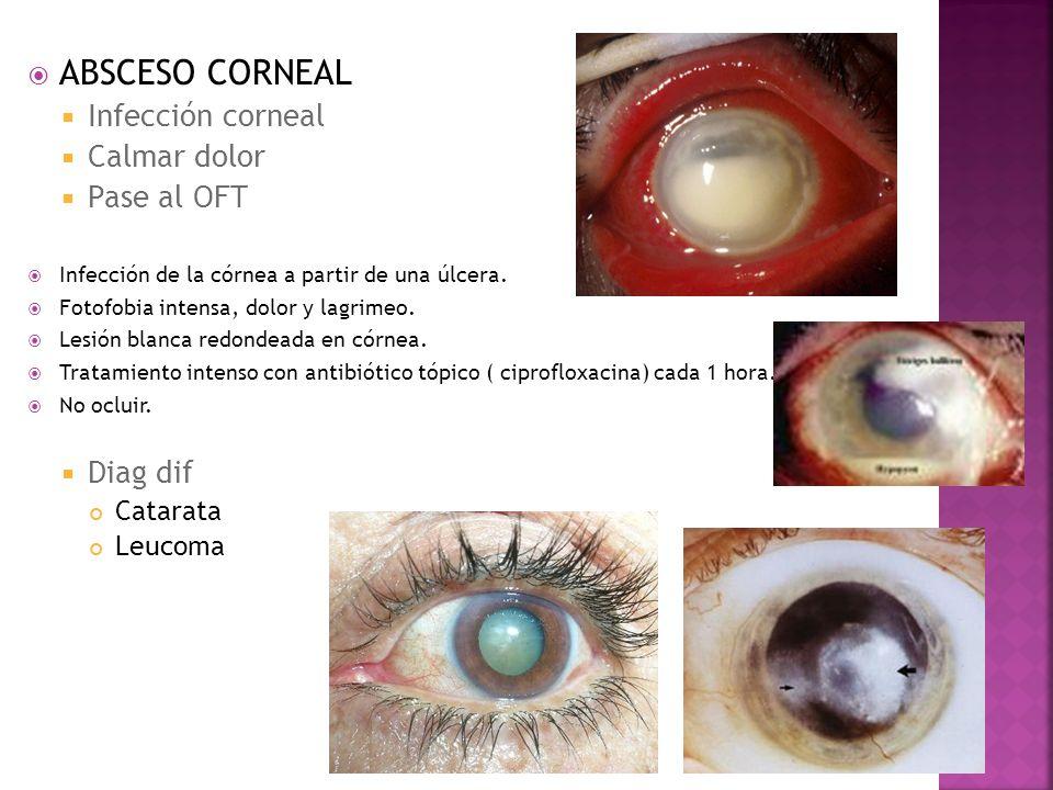 ABSCESO CORNEAL Infección corneal Calmar dolor Pase al OFT Infección de la córnea a partir de una úlcera. Fotofobia intensa, dolor y lagrimeo. Lesión