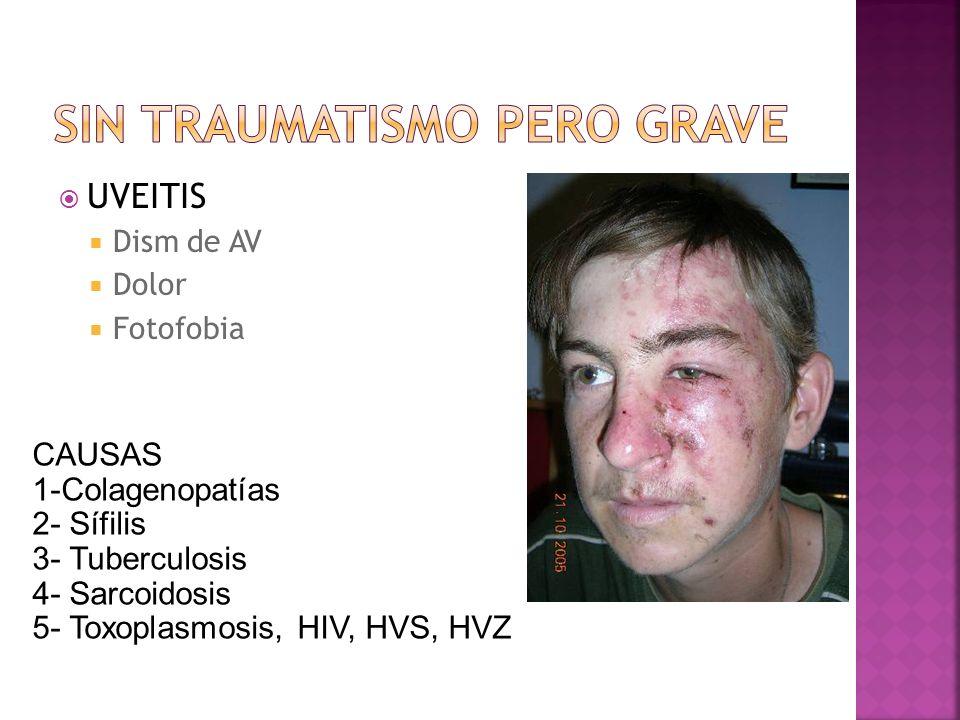 UVEITIS Dism de AV Dolor Fotofobia CAUSAS 1-Colagenopatías 2- Sífilis 3- Tuberculosis 4- Sarcoidosis 5- Toxoplasmosis, HIV, HVS, HVZ