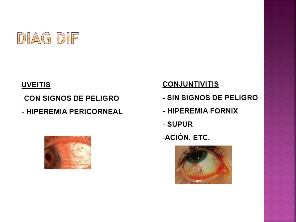 UVEITIS -CON SIGNOS DE PELIGRO - HIPEREMIA PERICORNEAL CONJUNTIVITIS - SIN SIGNOS DE PELIGRO - HIPEREMIA FORNIX - SUPUR -ACIÓN, ETC.