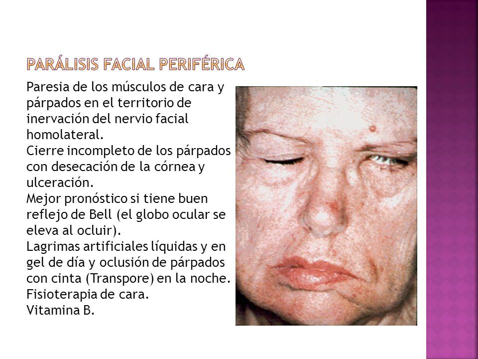 Paresia de los músculos de cara y párpados en el territorio de inervación del nervio facial homolateral. Cierre incompleto de los párpados con desecac