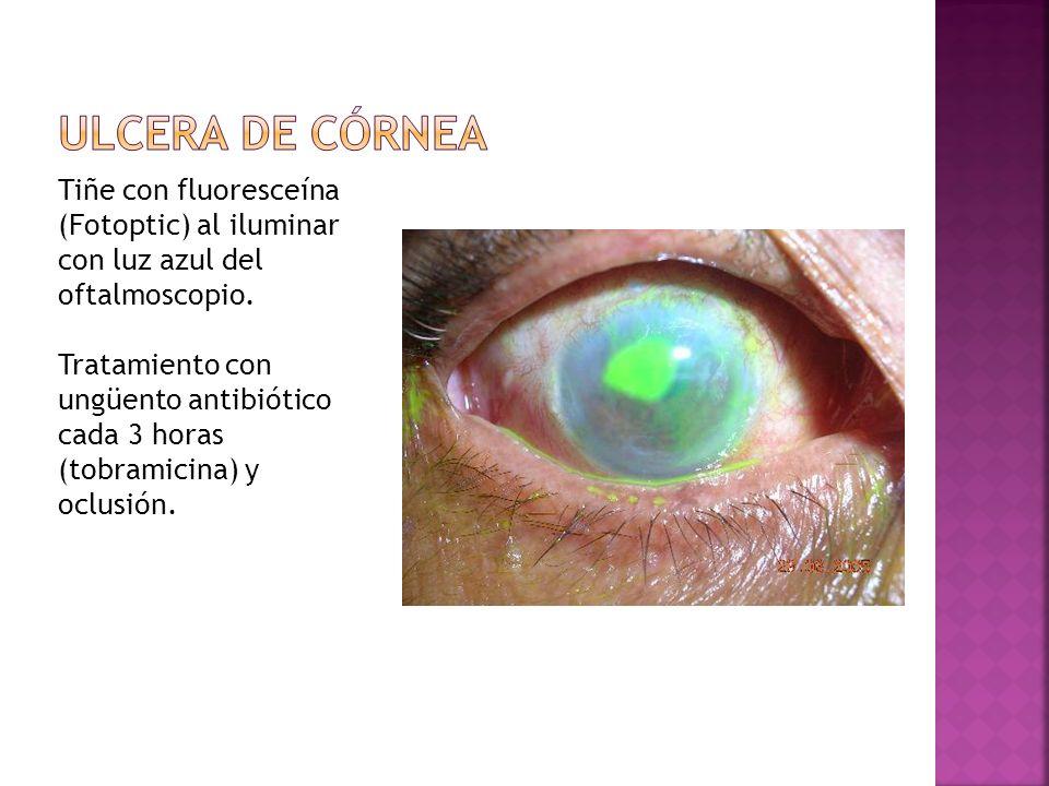 Tiñe con fluoresceína (Fotoptic) al iluminar con luz azul del oftalmoscopio. Tratamiento con ungüento antibiótico cada 3 horas (tobramicina) y oclusió