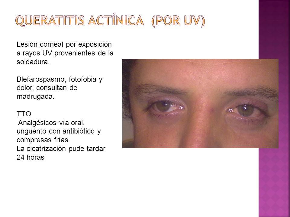 Lesión corneal por exposición a rayos UV provenientes de la soldadura. Blefarospasmo, fotofobia y dolor, consultan de madrugada. TTO Analgésicos vía o