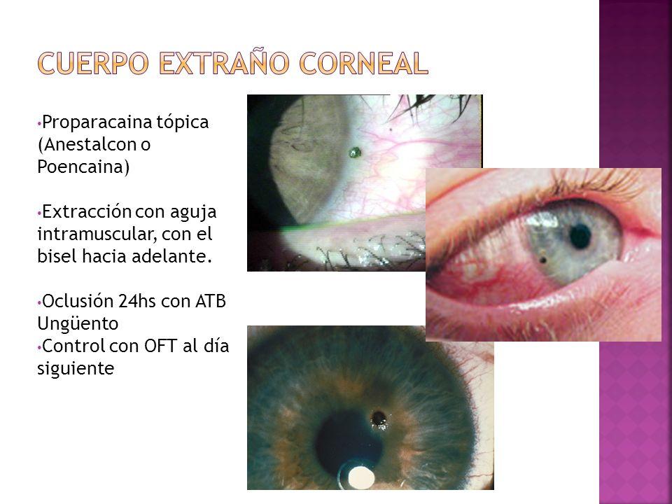 Proparacaina tópica (Anestalcon o Poencaina) Extracción con aguja intramuscular, con el bisel hacia adelante. Oclusión 24hs con ATB Ungüento Control c