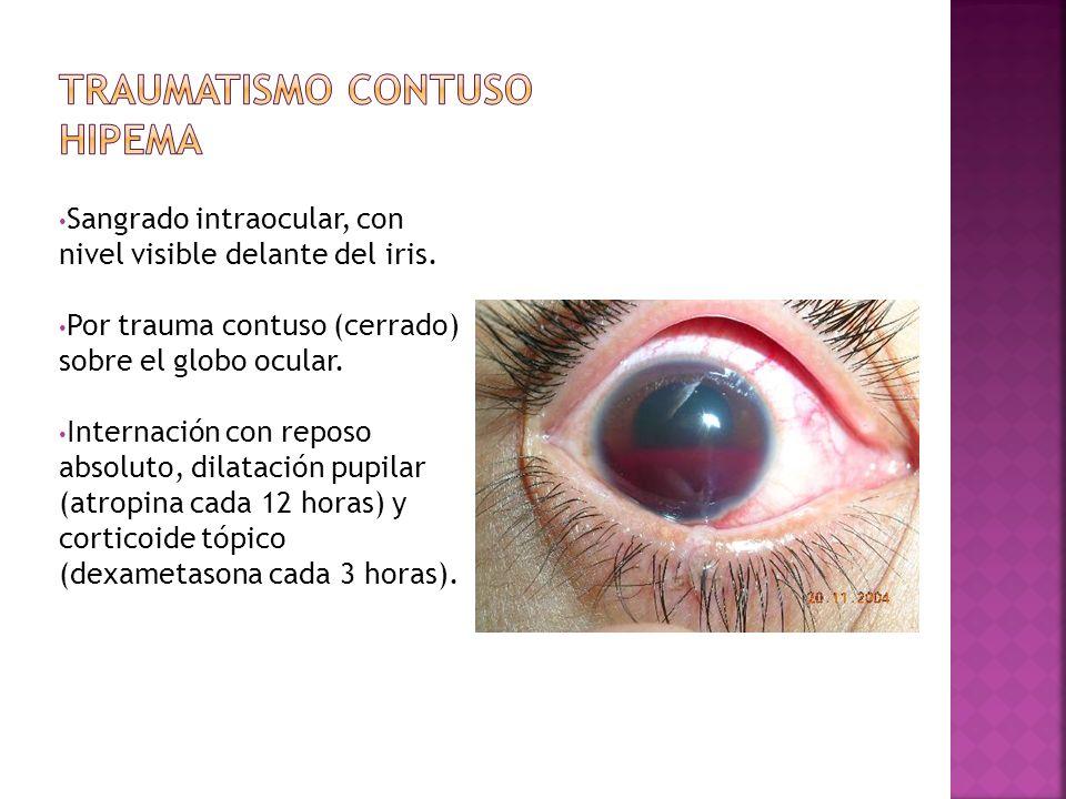 Sangrado intraocular, con nivel visible delante del iris. Por trauma contuso (cerrado) sobre el globo ocular. Internación con reposo absoluto, dilatac