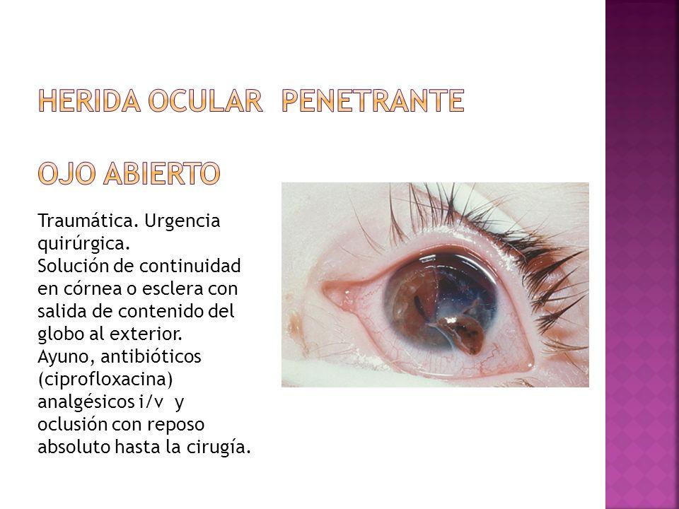 Traumática. Urgencia quirúrgica. Solución de continuidad en córnea o esclera con salida de contenido del globo al exterior. Ayuno, antibióticos (cipro