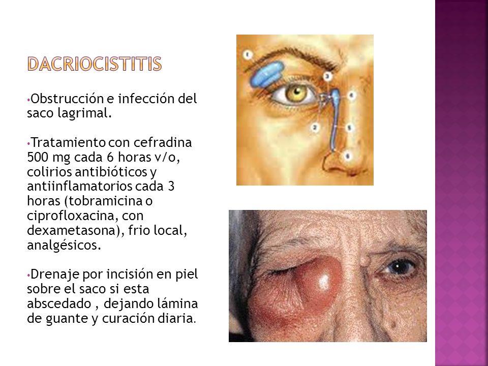 Obstrucción e infección del saco lagrimal. Tratamiento con cefradina 500 mg cada 6 horas v/o, colirios antibióticos y antiinflamatorios cada 3 horas (