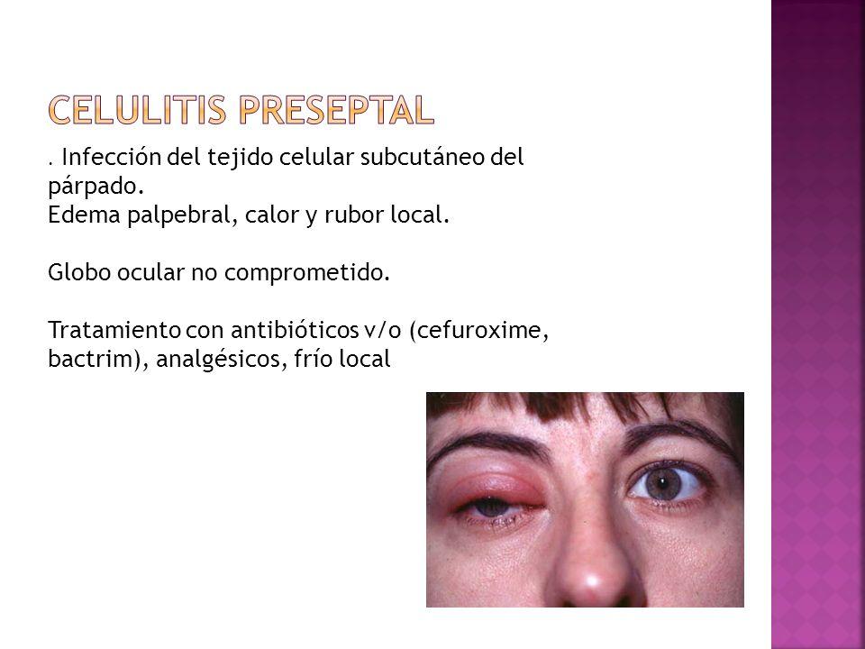 . Infección del tejido celular subcutáneo del párpado. Edema palpebral, calor y rubor local. Globo ocular no comprometido. Tratamiento con antibiótico