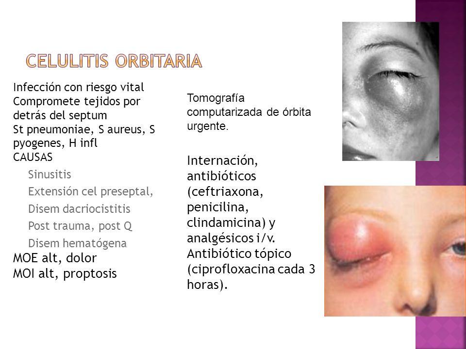 Infección con riesgo vital Compromete tejidos por detrás del septum St pneumoniae, S aureus, S pyogenes, H infl CAUSAS Sinusitis Extensión cel presept