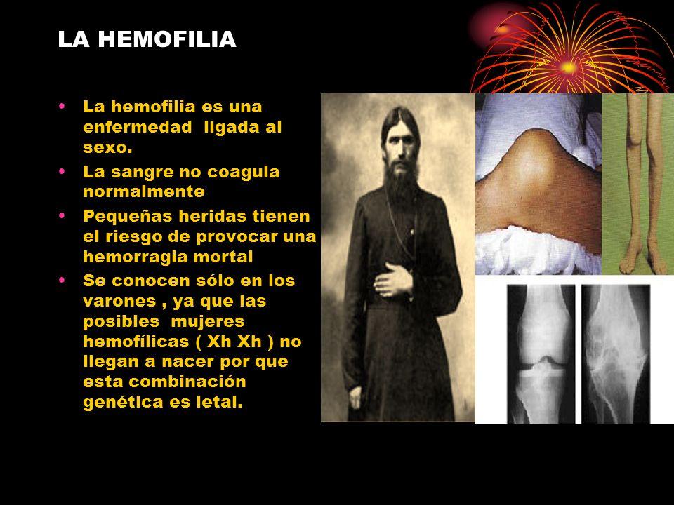 LA HEMOFILIA La hemofilia es una enfermedad ligada al sexo. La sangre no coagula normalmente Pequeñas heridas tienen el riesgo de provocar una hemorra
