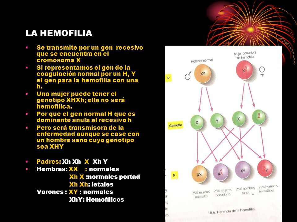 LA HEMOFILIA Se transmite por un gen recesivo que se encuentra en el cromosoma X Si representamos el gen de la coagulación normal por un H, Y el gen p