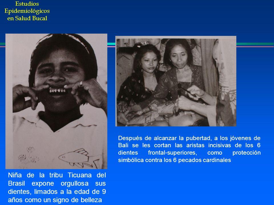 Estudios Epidemiológicos en Salud Bucal Niña de la tribu Ticuana del Brasil expone orgullosa sus dientes, limados a la edad de 9 años como un signo de