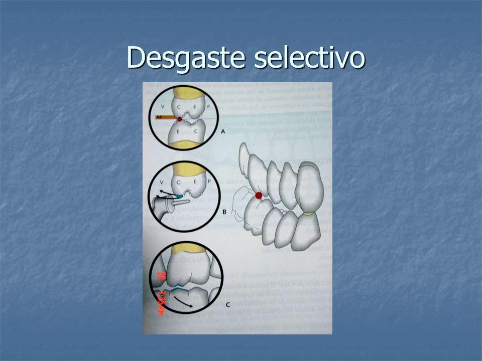 Desgaste selectivo Desgaste selectivo