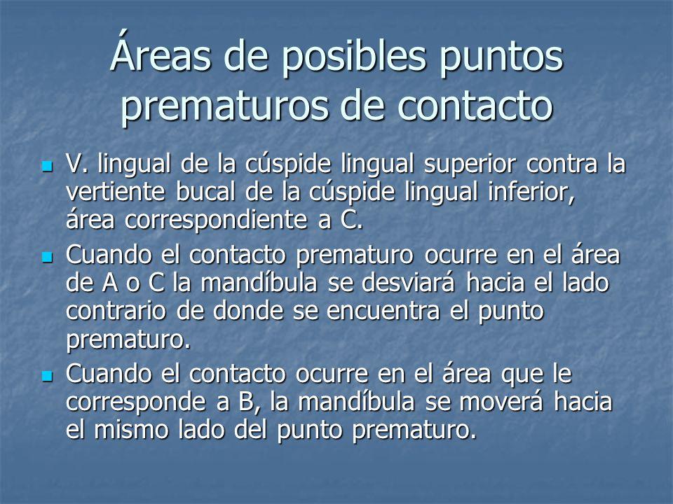 Áreas de posibles puntos prematuros de contacto V.