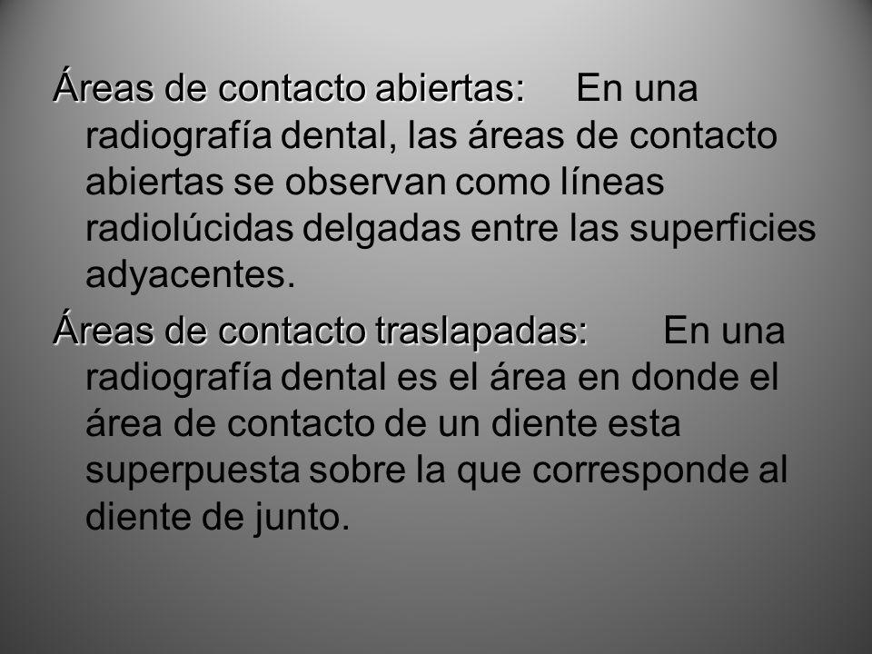 Áreas de contacto abiertas: Áreas de contacto abiertas:En una radiografía dental, las áreas de contacto abiertas se observan como líneas radiolúcidas