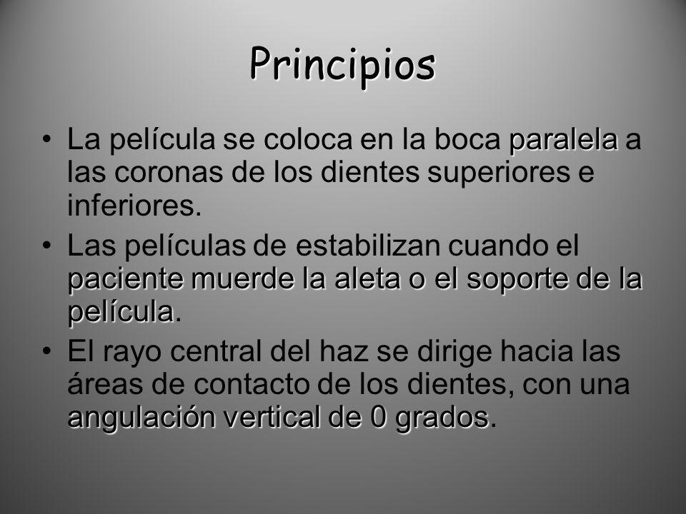Principios paralelaLa película se coloca en la boca paralela a las coronas de los dientes superiores e inferiores. paciente muerde la aleta o el sopor