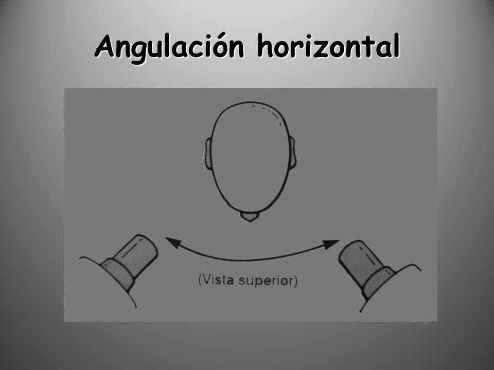 Angulación horizontal
