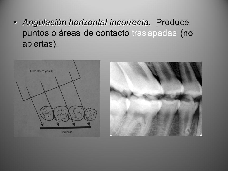 Angulación horizontal incorrecta.Angulación horizontal incorrecta. Produce puntos o áreas de contacto traslapadas (no abiertas).