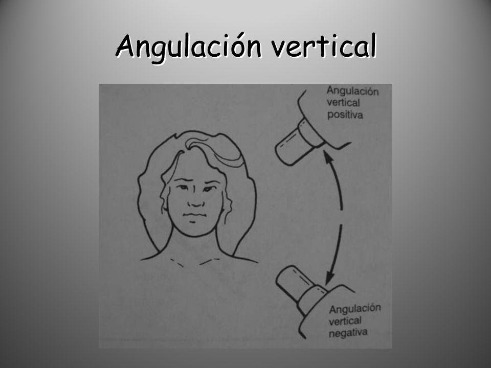 Angulación vertical
