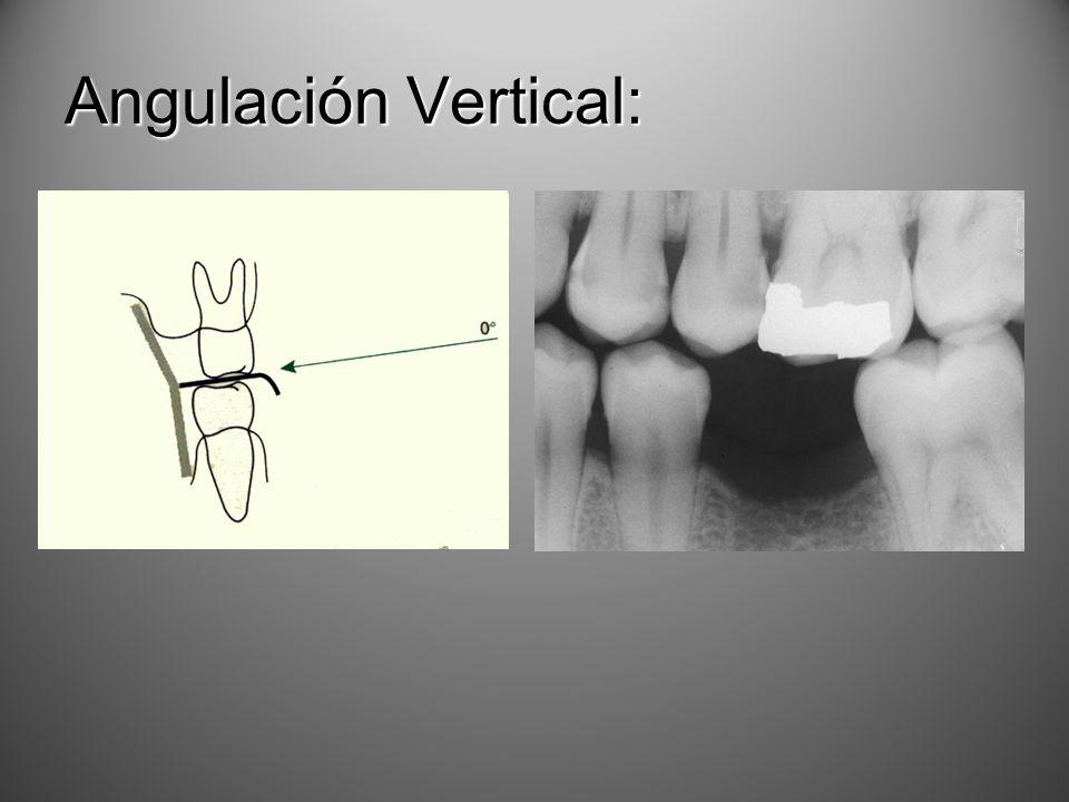 Angulación Vertical: