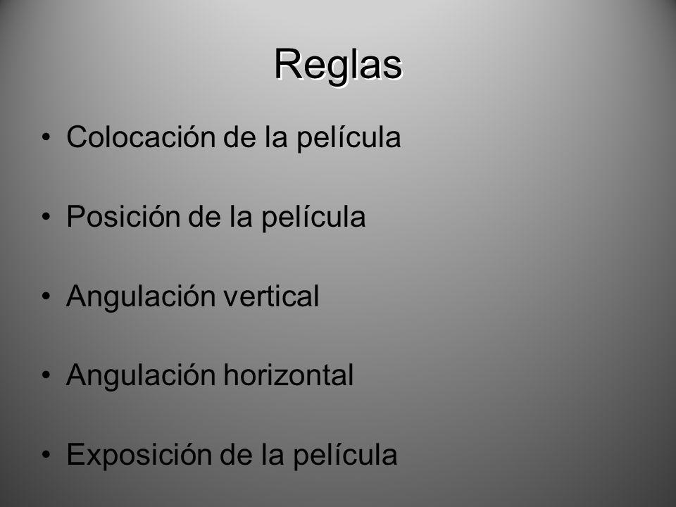 Colocación de la película Posición de la película Angulación vertical Angulación horizontal Exposición de la película Reglas