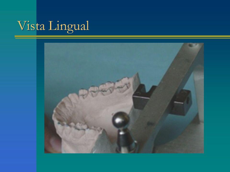 Vista Lingual