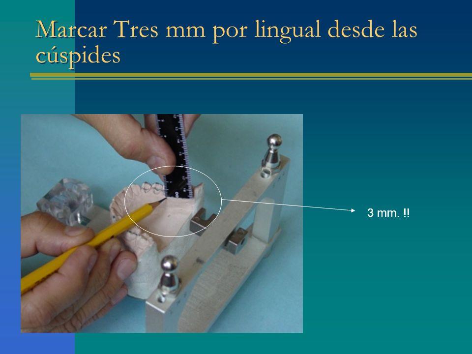 Marcar Tres mm por lingual desde las cúspides 3 mm. !!