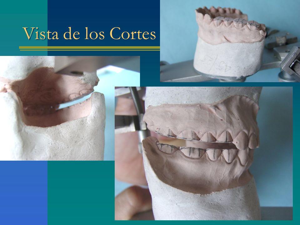 Vista de los Cortes