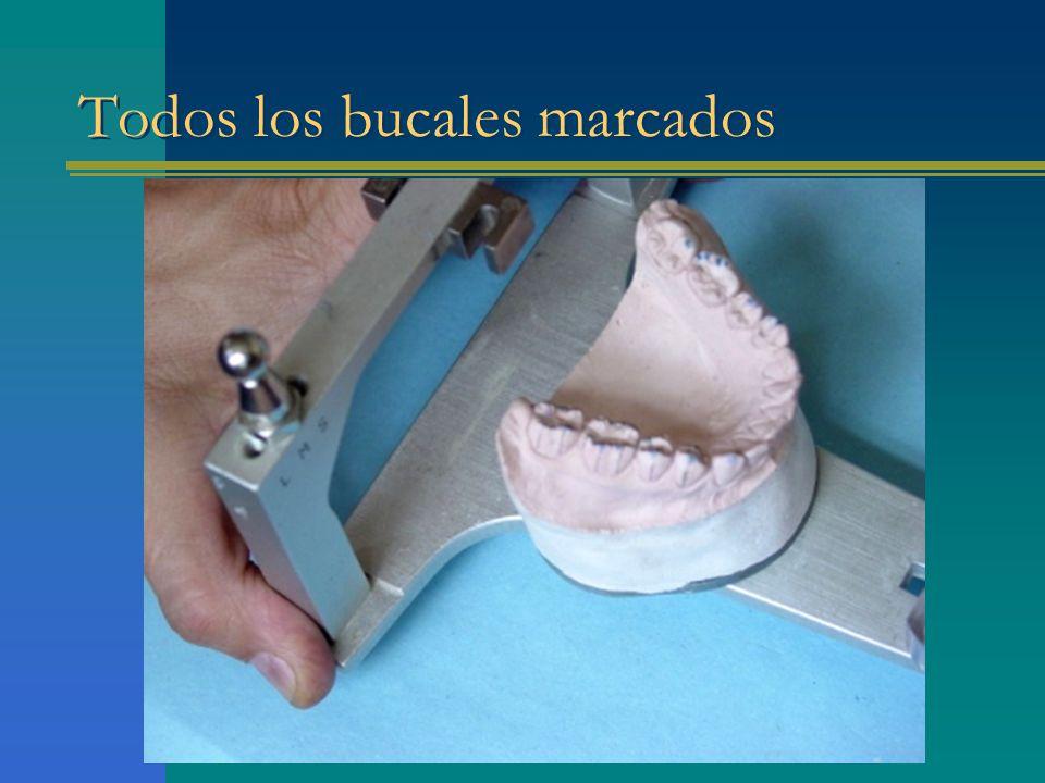 Marcación de rebordes oclusales
