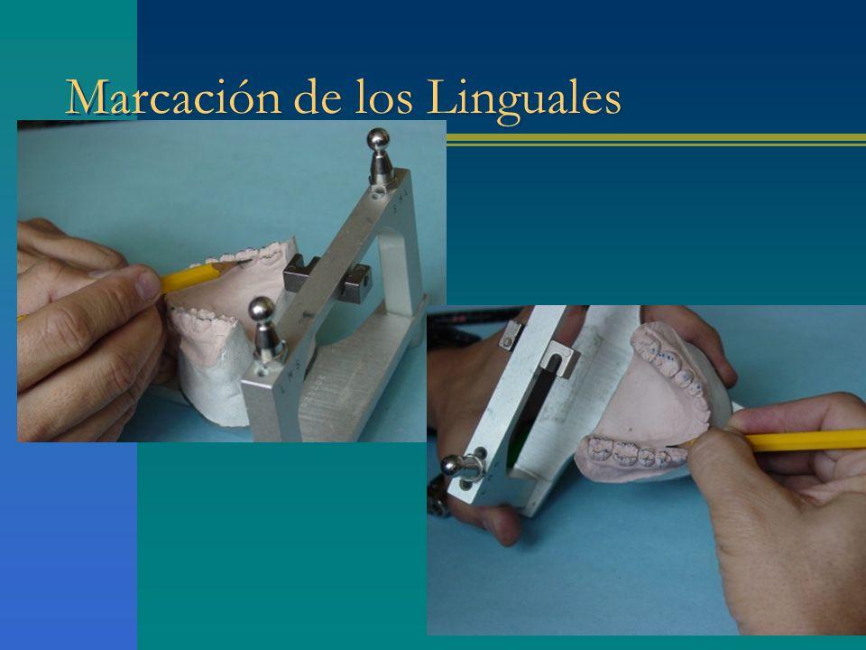 Marcación de los Linguales
