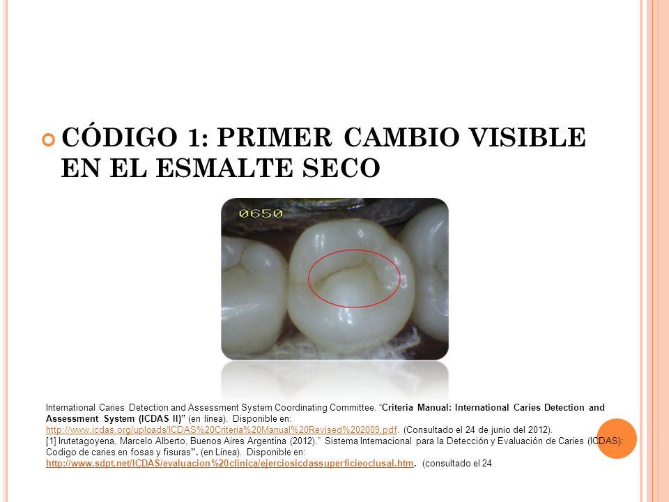 CÓDIGO 1: PRIMER CAMBIO VISIBLE EN EL ESMALTE SECO International Caries Detection and Assessment System Coordinating Committee.