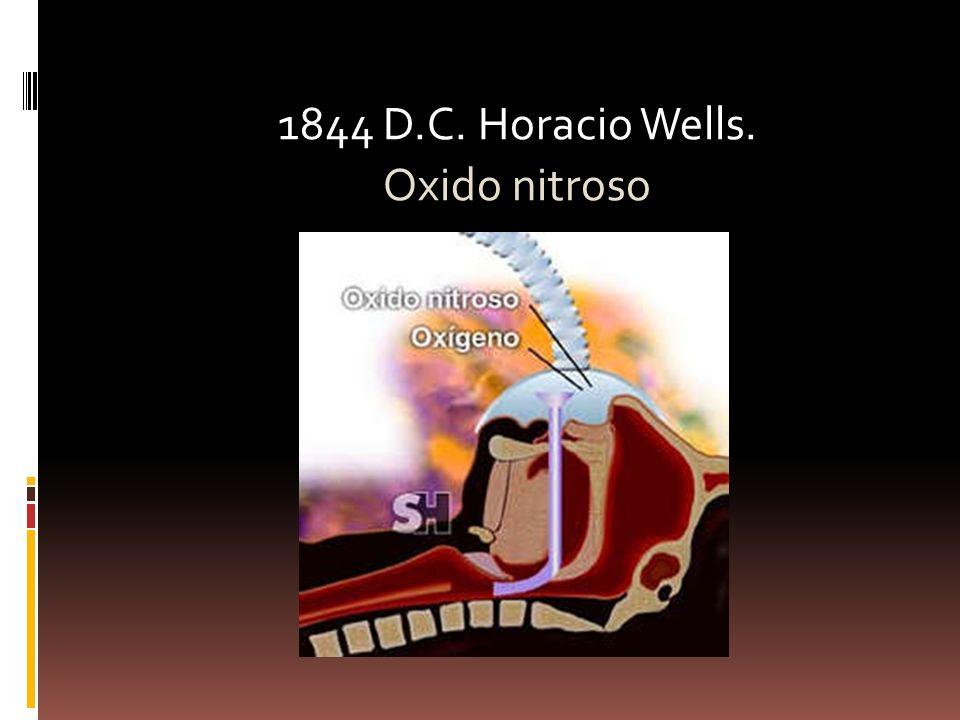 1844 D.C. Horacio Wells. Oxido nitroso