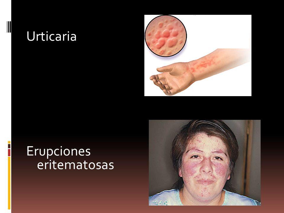 Urticaria Erupciones eritematosas